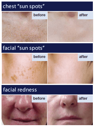 IPL Intense Pulsed Light Before and After
