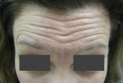 botox-forehead-before