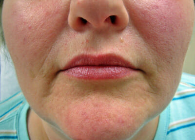 restylane-mouth-before
