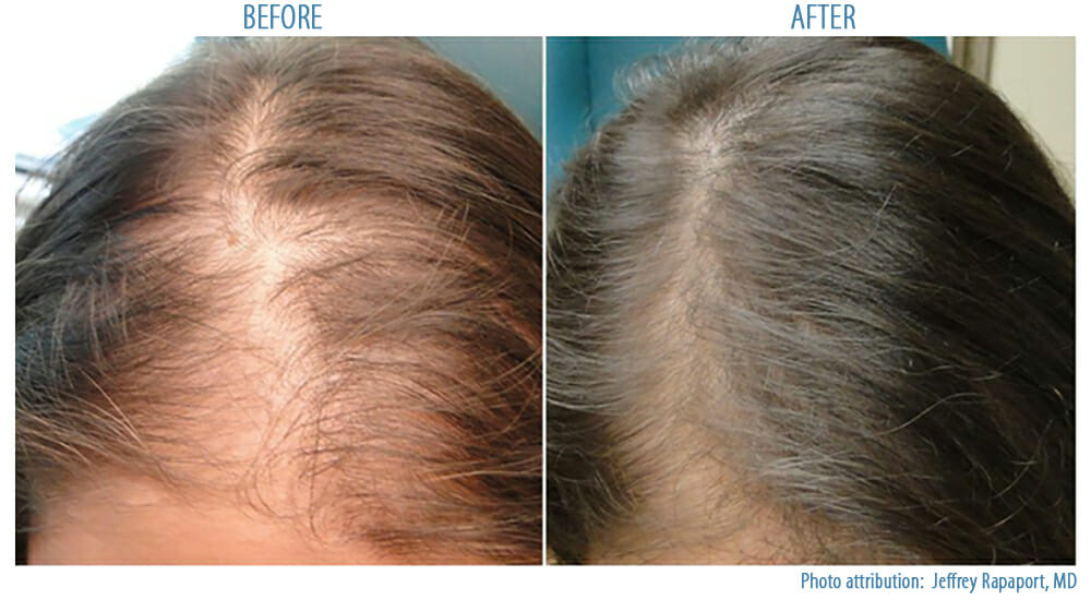 PRP Hair Loss Treatment   Before and After