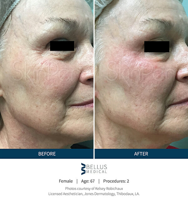 Microneedling with SkinPen   Before and After