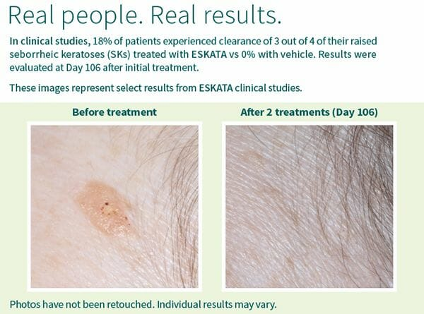 Eskata Before and After