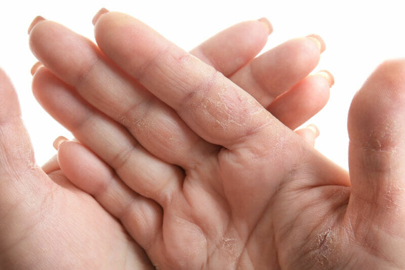 Dry Cracking Hands from COVID-19 washing