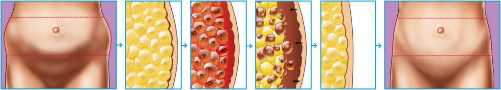 BTL Vanquish Me Fat Cell Reduction