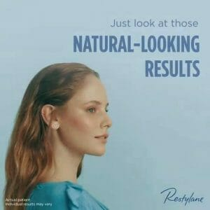 Restylane for natural looking results